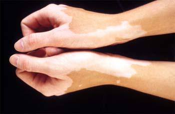 vitiligo - Leucoderma