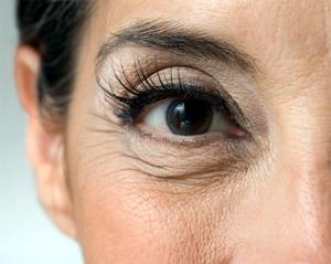 trị thâm quầng mắt lâu năm